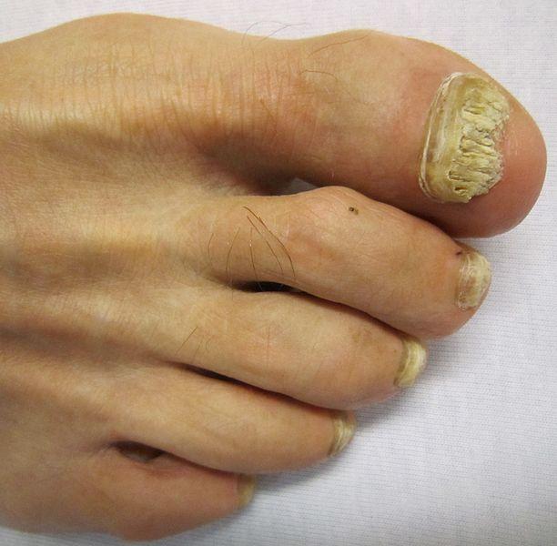 micosi piedi