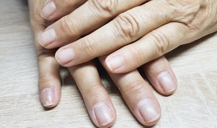 corso-ricostruzione-unghie-prima